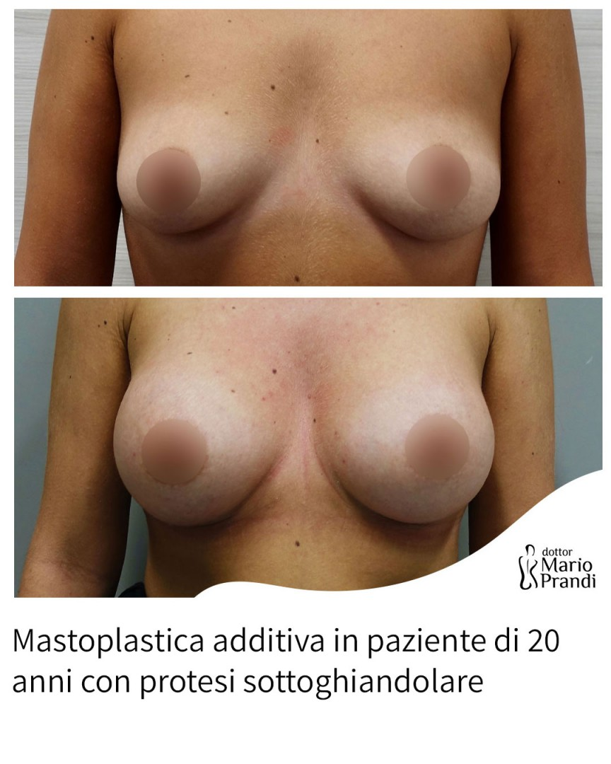 Mastoplastica additiva